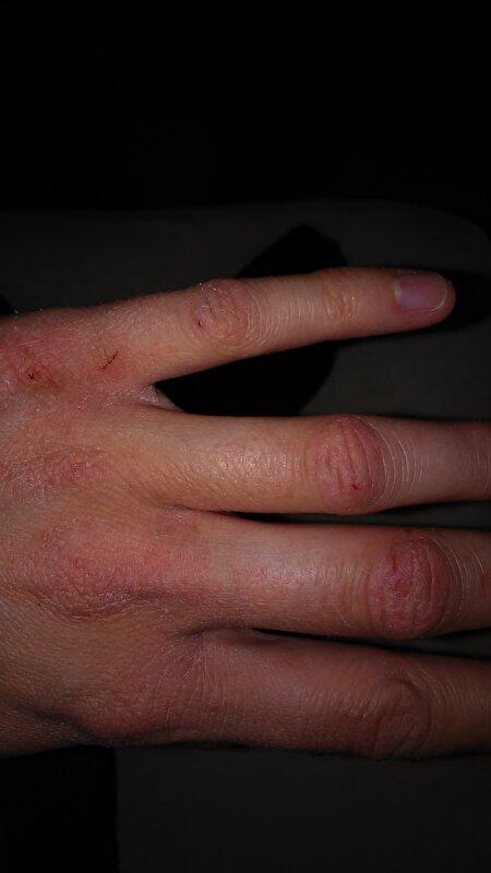 droge handen door kou