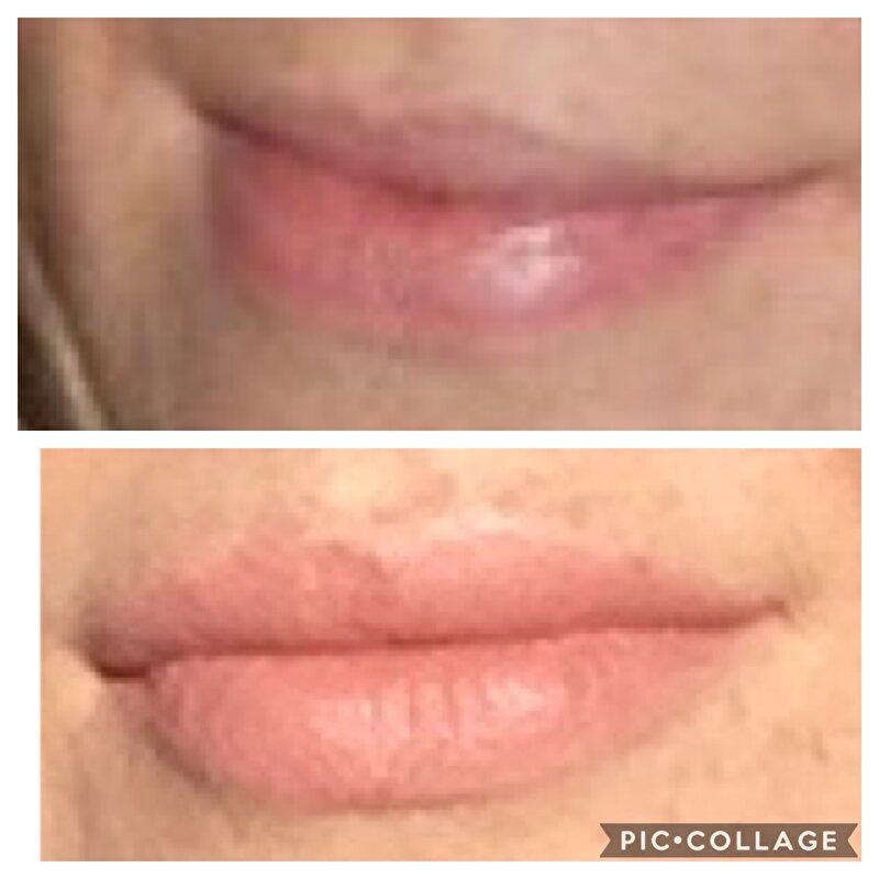 Cosmetische Chirgurgie Ervaringen Met Fillers Botox Bokt Nl